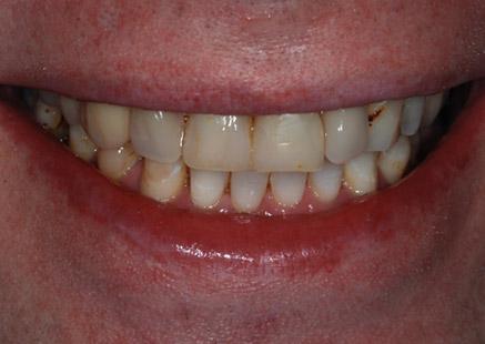 Dentures In Cheltenham - Arden House Dental