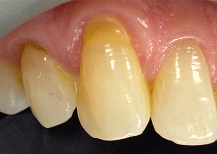 Are your Teeth Wearing? 10 Things you Can do to Help.