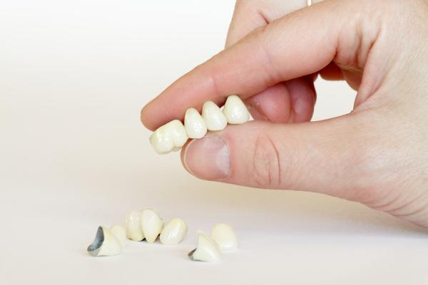 bigstock Porcelain Crowns Bridge dent 6593605